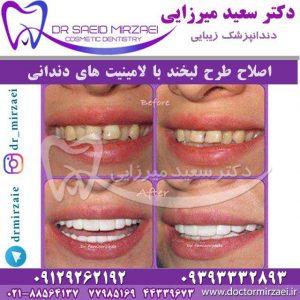 لامینیت دندانی