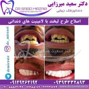 لامینیت های دندانی