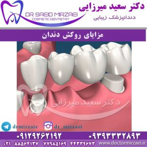 مزایای روکش دندان