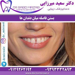 بستن فاصله میان دندان ها