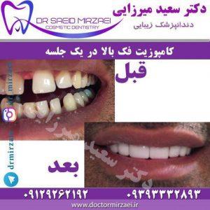 لمینیت دندان با کامپوزیت