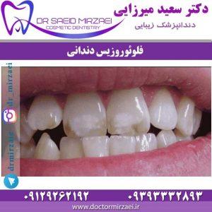 فلوئوروزیس دندانی