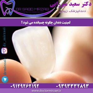 لمینیت دندان چگونه چسبانده مى-شود ؟