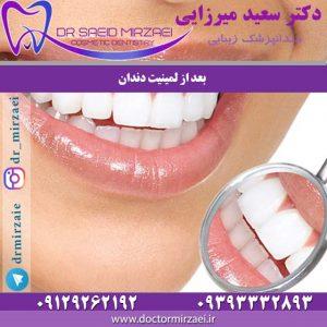بعد از لمینیت دندان