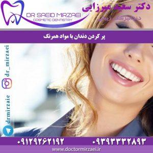 پر کردن دندان با مواد همرنگ