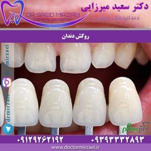 مراقبتهای پس از روکش دندان