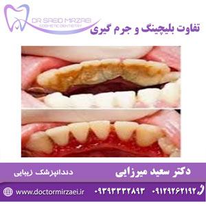 تفاوت بلیچینگ و سفید کردن دندان
