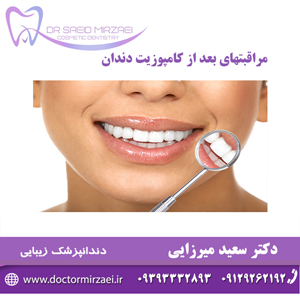 مراقبتهای بعد از کامپوزیت دندان