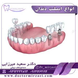انواع-ایمپلنت-دندان