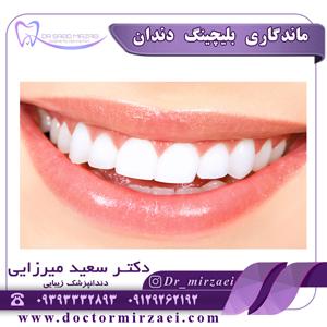 ماندگاری بلیچینگ دندان