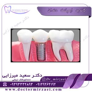 کاندید ایمپلنت دندان