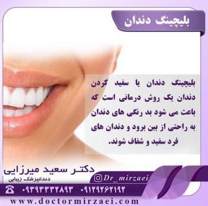 عوارض بلیچینگ دندان