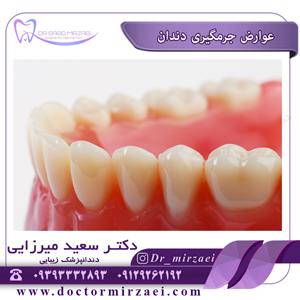عوارض جرمگیری دندان