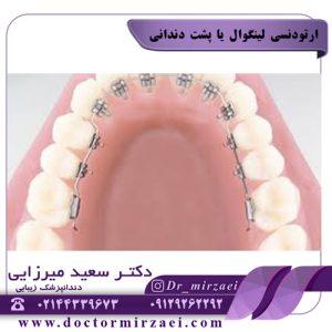 ارتودنسی لینگوال یا پشت دندانی