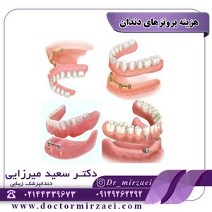 هزینه پروتزهای دندان