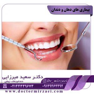بیماری های دهان و دندان