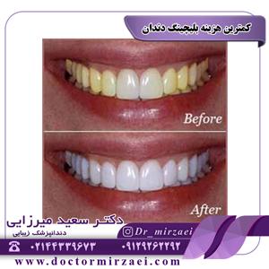 کمترین هزینه بلیچینگ دندان