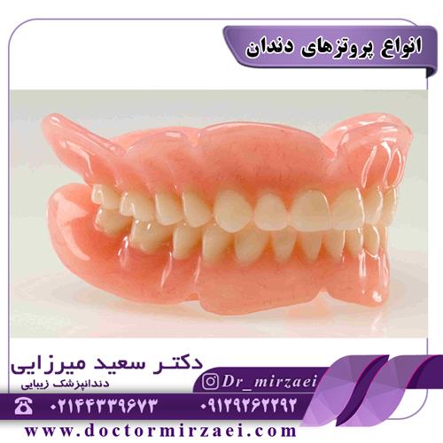 انواع پروتزهای دندان